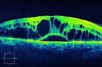 OCT tomographie par cohérence optique occlusions veineuses