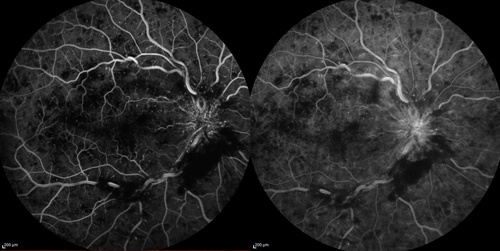Angiographie Occlusions Veineuses