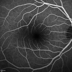 angiographie exploration crsc