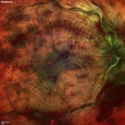 occlusion veine centrale retine
