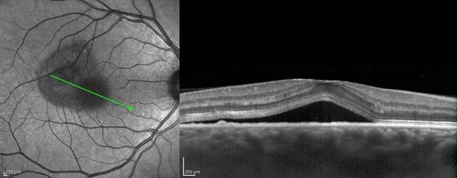 L'OCT : Tomographie en Cohérence Optique CRSC