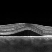 ChorioRétinite Séreuse Centrale CRSC